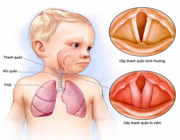 Nếu không kịp thời phát hiện bệnh sẽ dẫn đến những biến chứng nặng nề cho trẻ