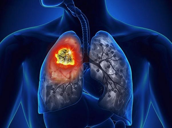 Có những loại ung thư phổi nào