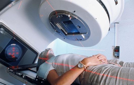hóa xạ trị là gì