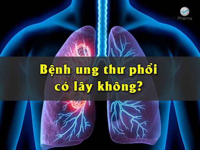 ung thư phổi có lây không