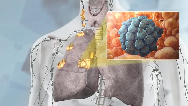 ung thư phổi giai đoạn 3