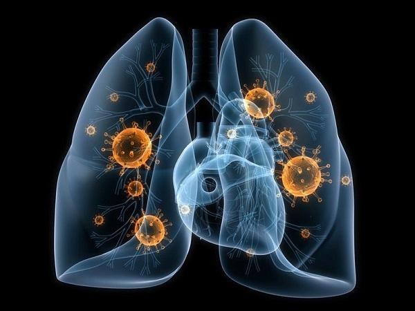 ung thư phổi có di truyền hay không