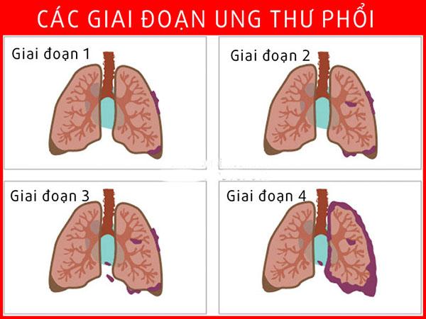 bệnh ung thư phổi giai đoạn cuối