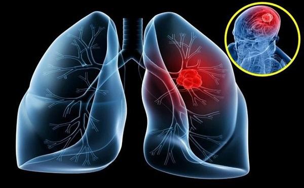 ung thư phổi có bị lây không